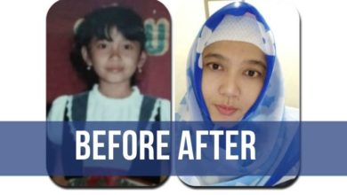 before after photo